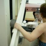 Mammograf w Opolu. Sprawdź kiedy